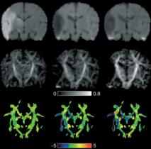 Risk of brain injury in preterm babies influenced by genetic variants