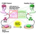 New treatment of Fukuyama congenital muscular dystrophy