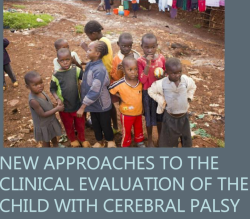 New approaches to the clinical evaluation of the child with cerebral palsy