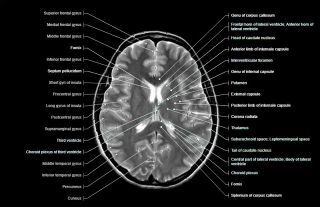 Normal MRI