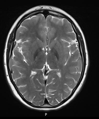 PLA2G6-associated neurodegeneration (Female, 15yrs)