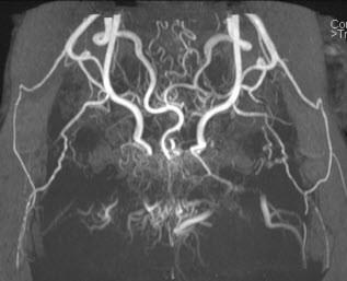 Moyamoya disease (female, 6yrs)